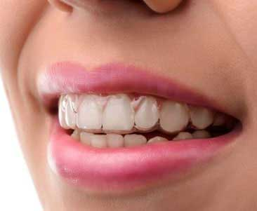 Invisalign can help you archieve a straighter and more aesthetic smile without metal brackets or wires, provide discreet treatment and amazing results.
