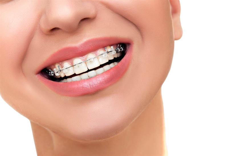 braces orthodontics